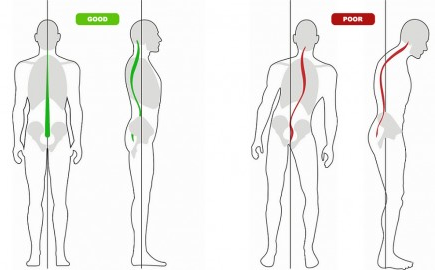 oregon city chiropractor explains what good posture looks like